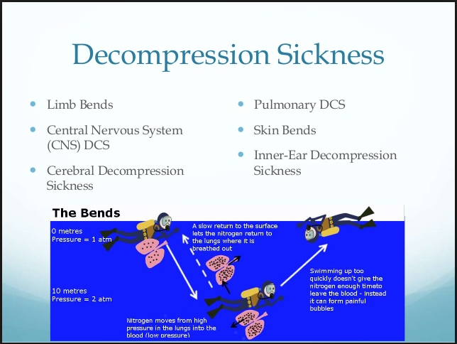can you die from decompression sickness